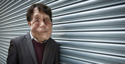 The ugly face of disability hate crime